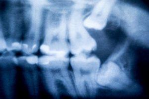 wisdom teeth removal Colorado Springs